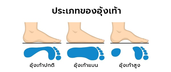 ประเภทของอุ้งเท้า